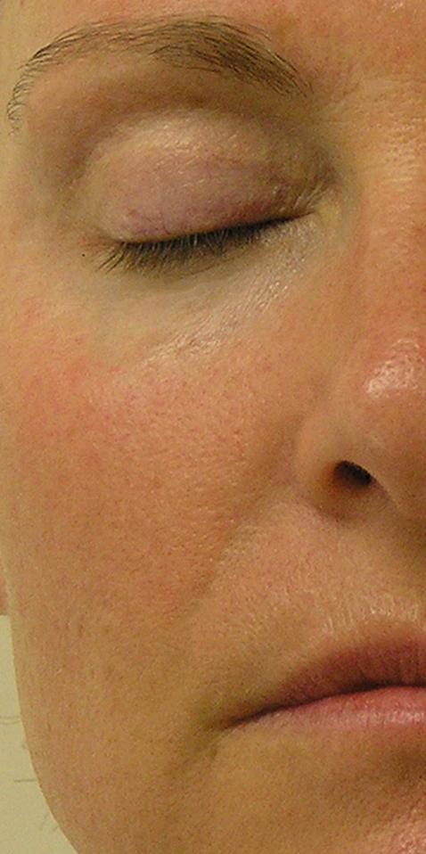 nasal fold after