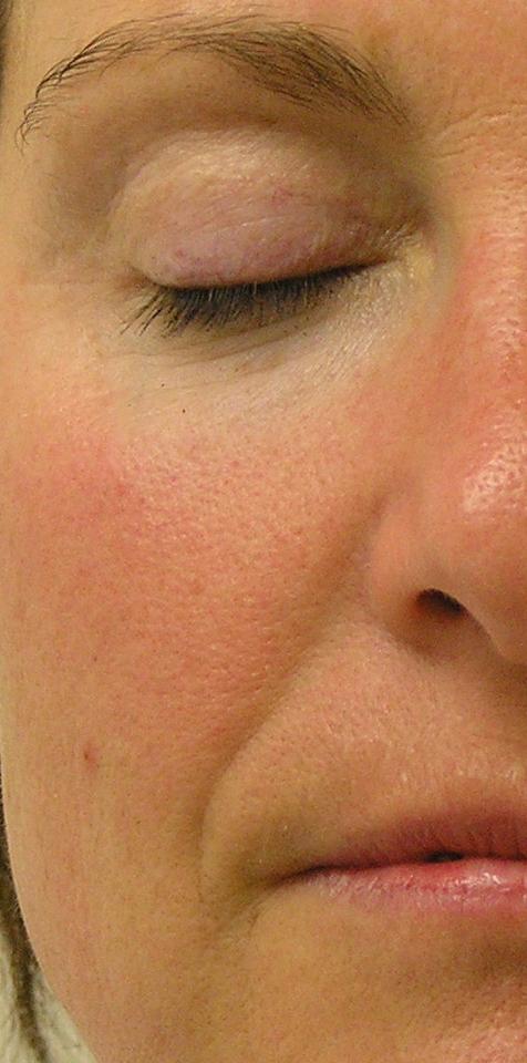 nasal fold before