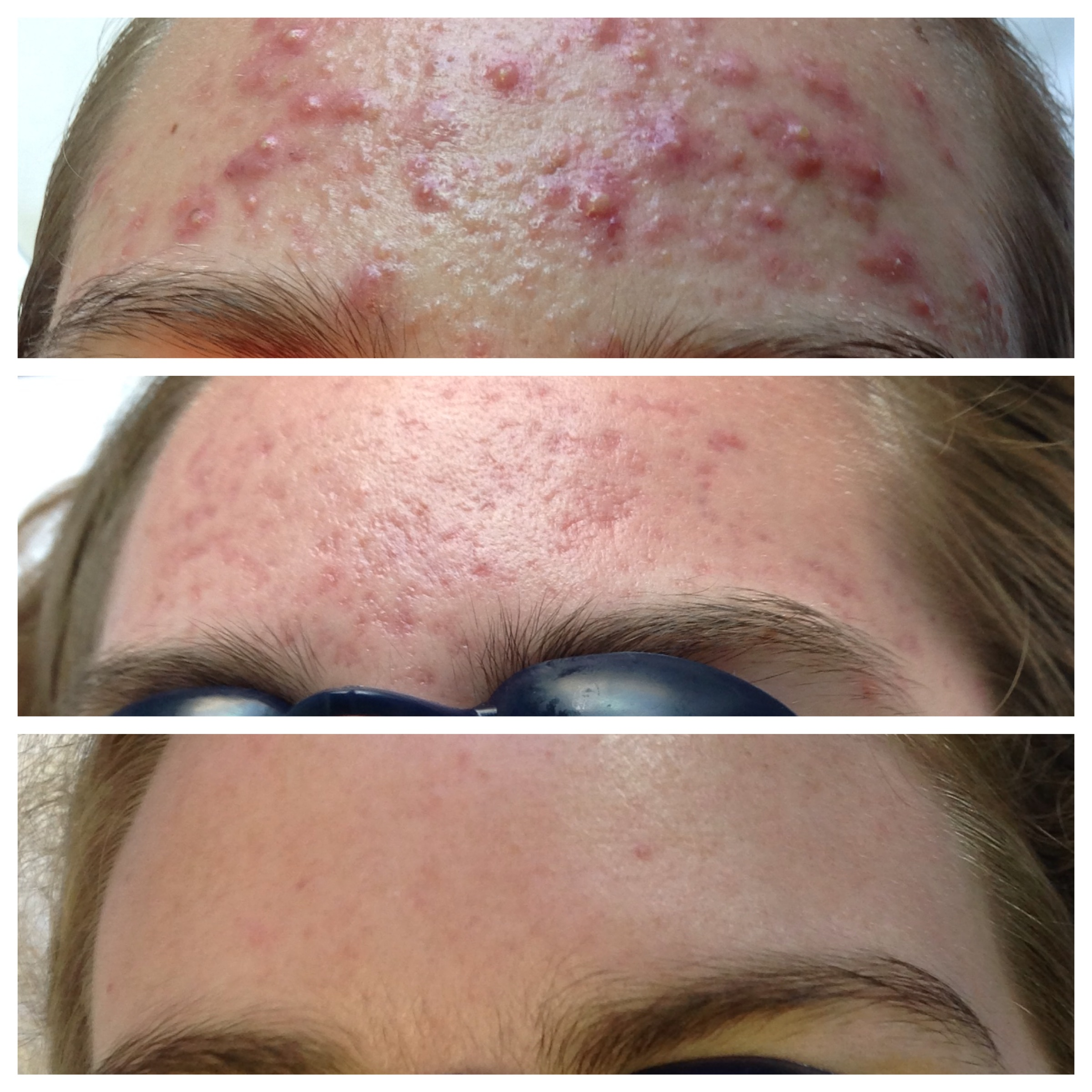 Cipro for cystic acne